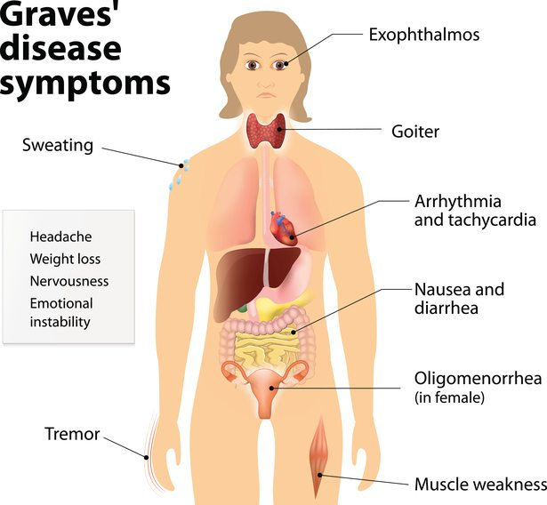 Graves' disease symptoms
