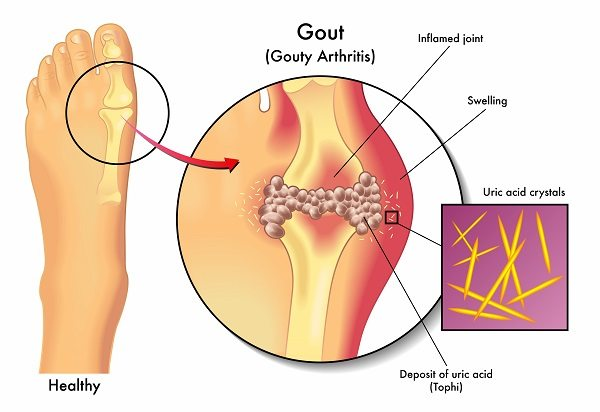 what is gout in the toe