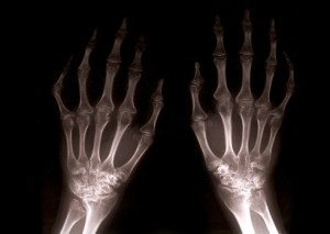 Fish oil may help prevent or treat arthritis