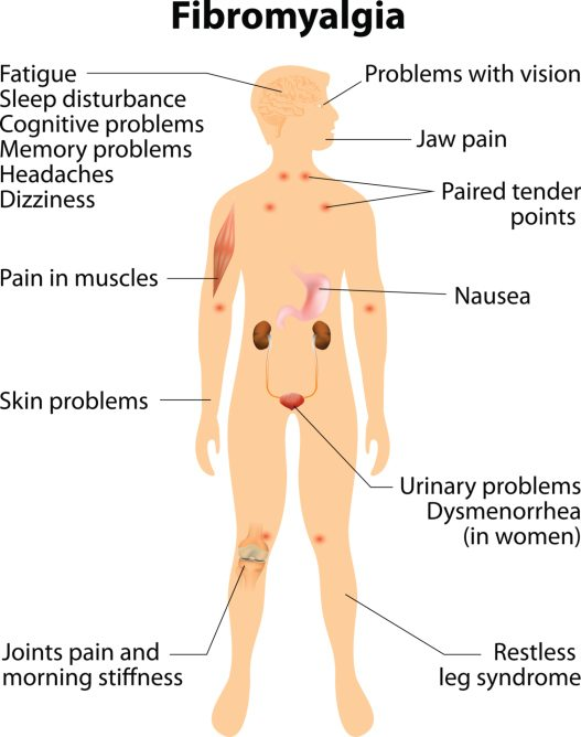 fibromyalgia signs and symptoms.