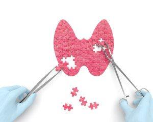 Optimise Your Thyroid Medication