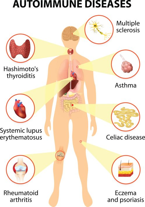 hashimoto's disease: your guide for living with hypothyroidism, Human Body