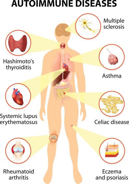 Autoimmune disease Hashimotos