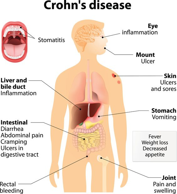 the characteristics causes and symptoms of crohns disease a gastrointestinal system disease Crohn disease can cause intestinal obstructions theories include a faulty immune system response triggered by bacteria or a virus certain foods may aggravate symptoms of crohn disease, most often dairy products, fats.