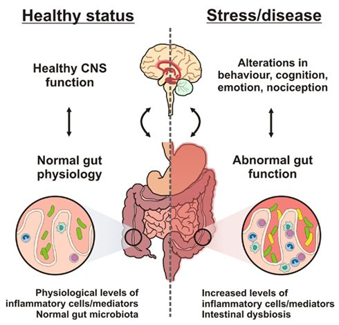 gut brain axis and depression