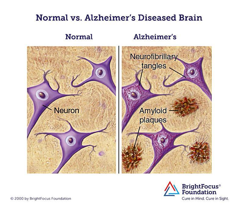 Alzheimers brain amyloid plaques
