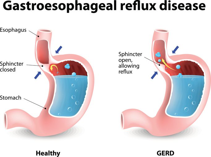 gastroesophageal reflux disease Gastroesophageal reflux disease (gerd), also called acid reflux, occurs when stomach acid backs up into the esophagus left untreated, gerd can lead to several complications, such as barrett's esophagus, esophagitis, and esophageal strictures at stanford, we offer a full range of advanced.