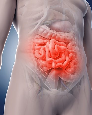 Does Candida Cause Leaky Gut Syndrome