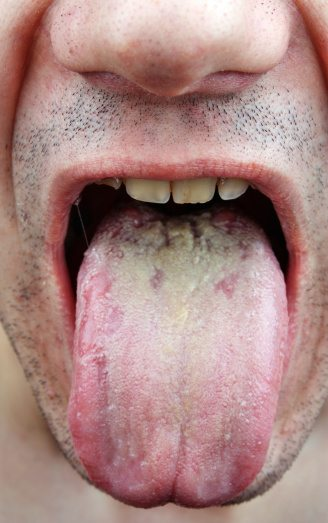 Other Types of Candida Infection