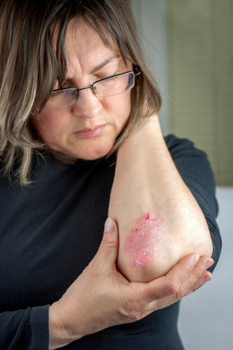 What is Psoriasis and Its Symptoms