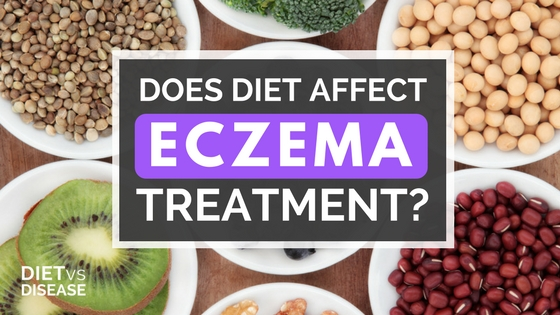 Does Diet Affect Eczema Treatment-