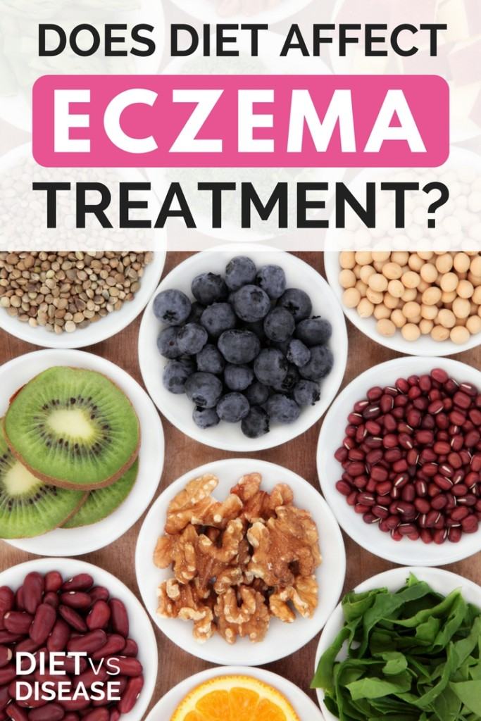 Does Diet Affect Eczema Treatment- (1)