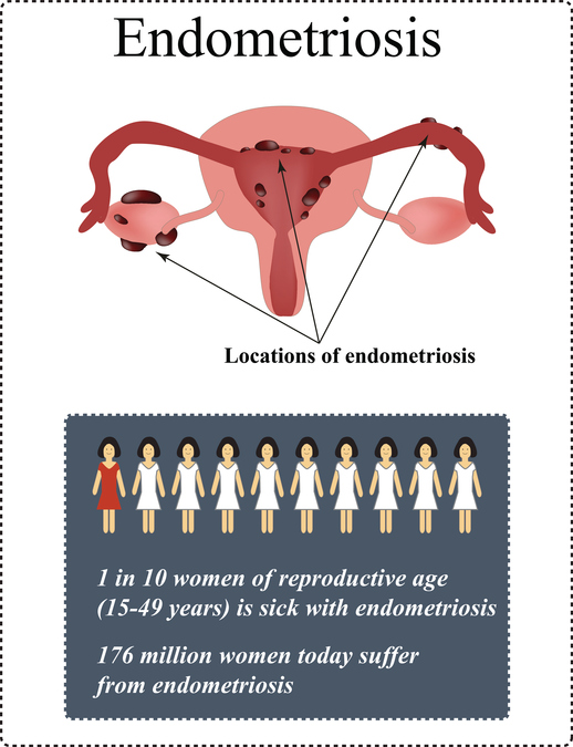 Endometriosis prevalence