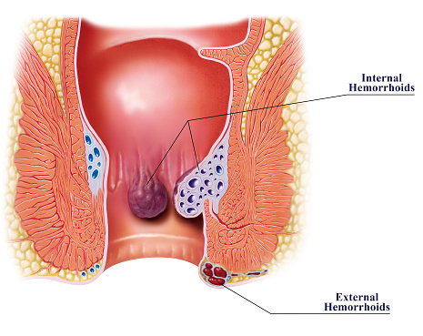 Diagnosing Hemorrhoids