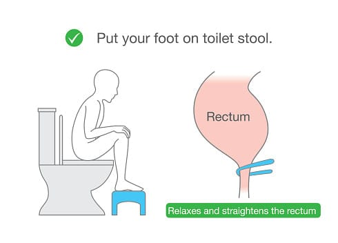 Squatty potty for hemorrhoids