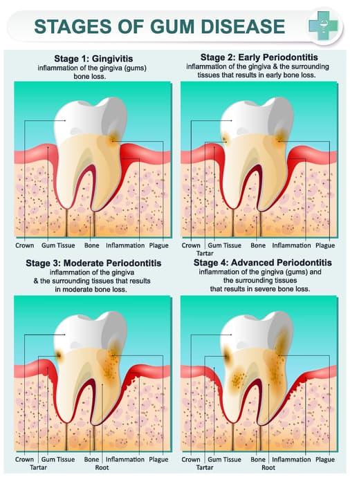 How To Get Rid Of Gingivitis Treatment For Bleeding Gum Disease
