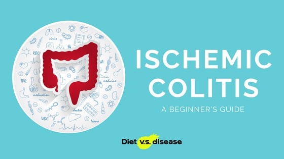 A Beginner's Guide to Ischemic Colitis